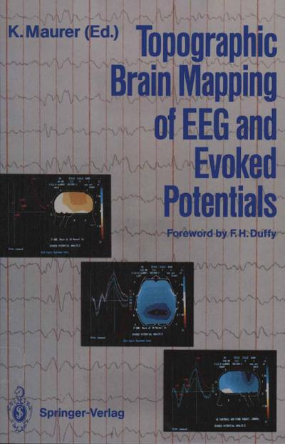Topographic Brain Mapping of EEG and Evoked Potentials - Konrad Maurer