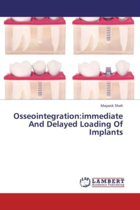 Osseointegration:immediate And Delayed Loading Of Implants
