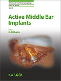 Active Middle Ear Implants - K. Boeheim