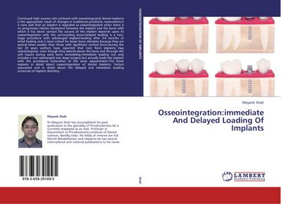Osseointegration:immediate And Delayed Loading Of Implants - Mayank Shah